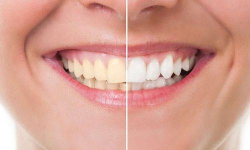 Pregunta al experto: cómo blanquear los dientes