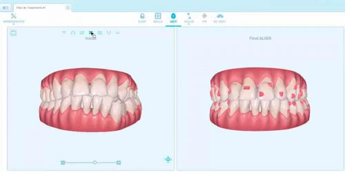 ortodoncia invisible castellon invisalign